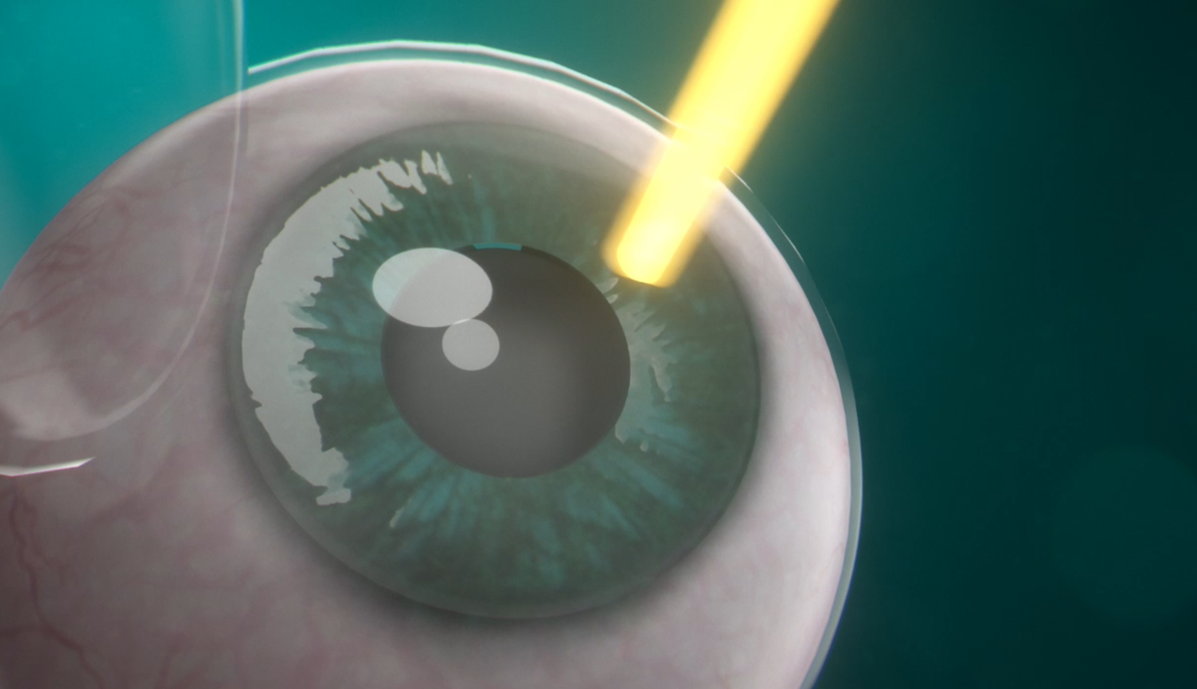 Former Fda Supervisor Calls His Approval Of Lasik A Mistake