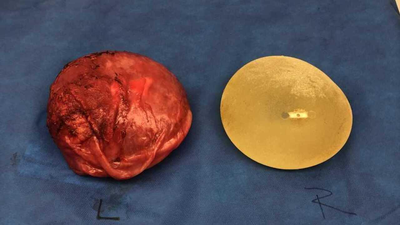 Allergan implant 2
