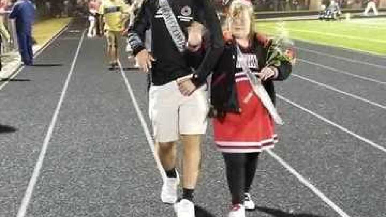 Special needs student named homecoming queen