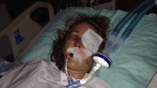 Adelaid Perr recovers after being hit by careless driver