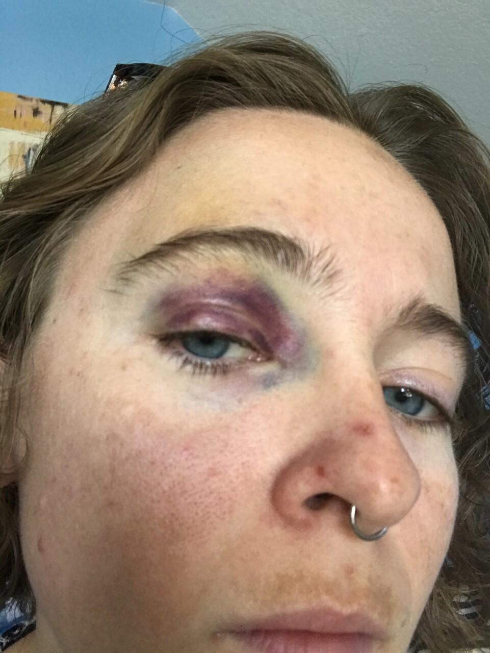Celia Palmer black eye