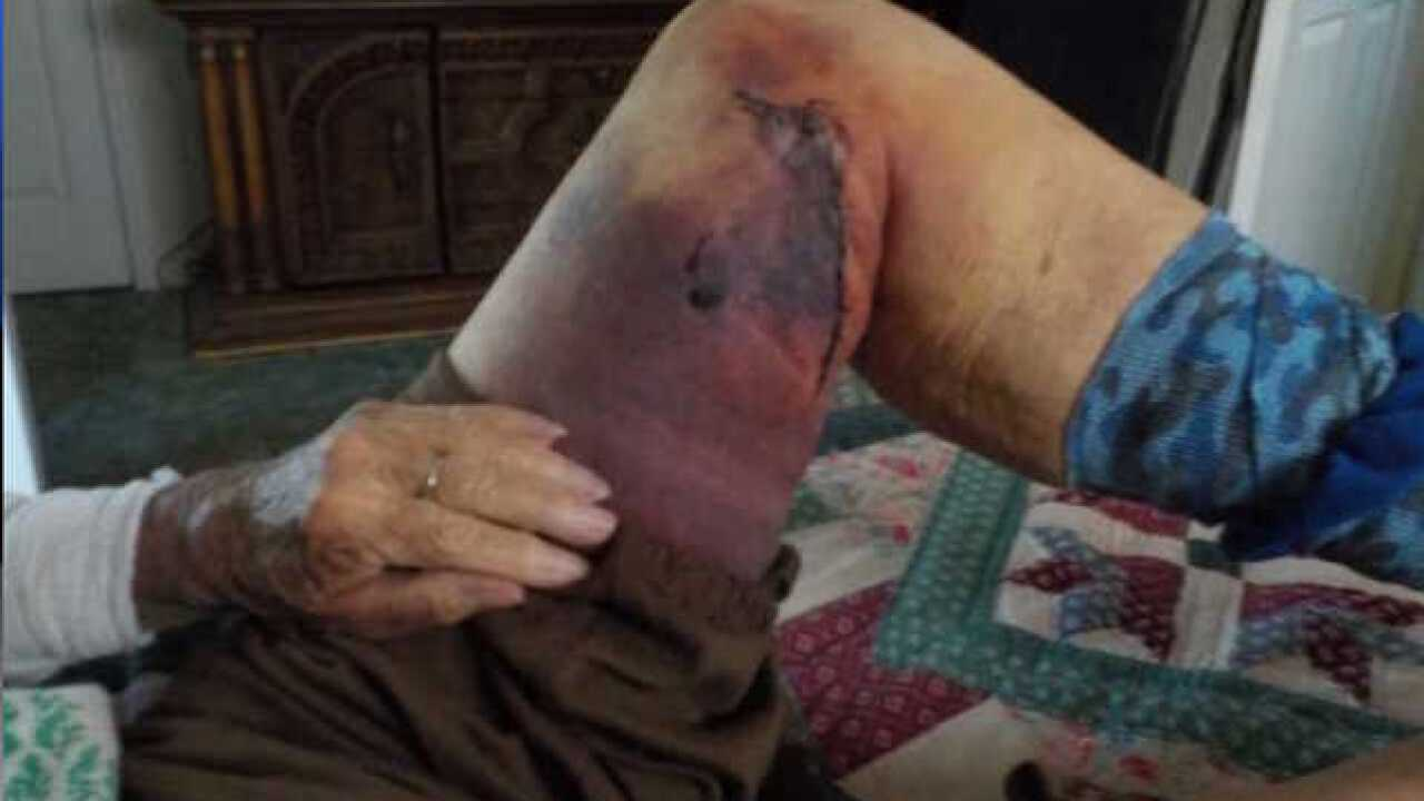 Grandmother covered in bruises after elk attack