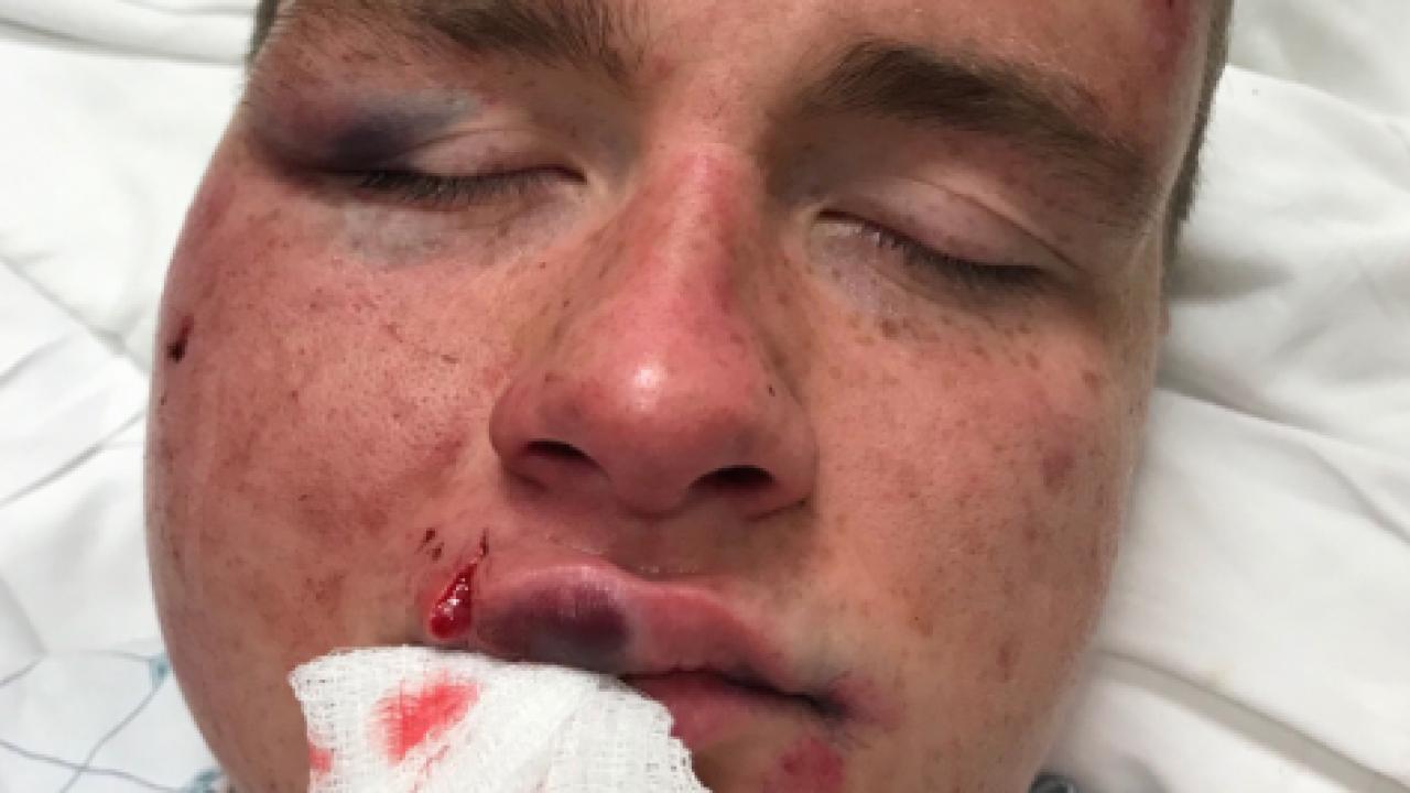 Virginia Beach man, boyfriend say they were brutally attacked in D.C. hatecrime