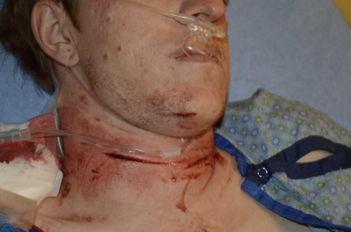 Spencer Erickson injuries 2.jpg