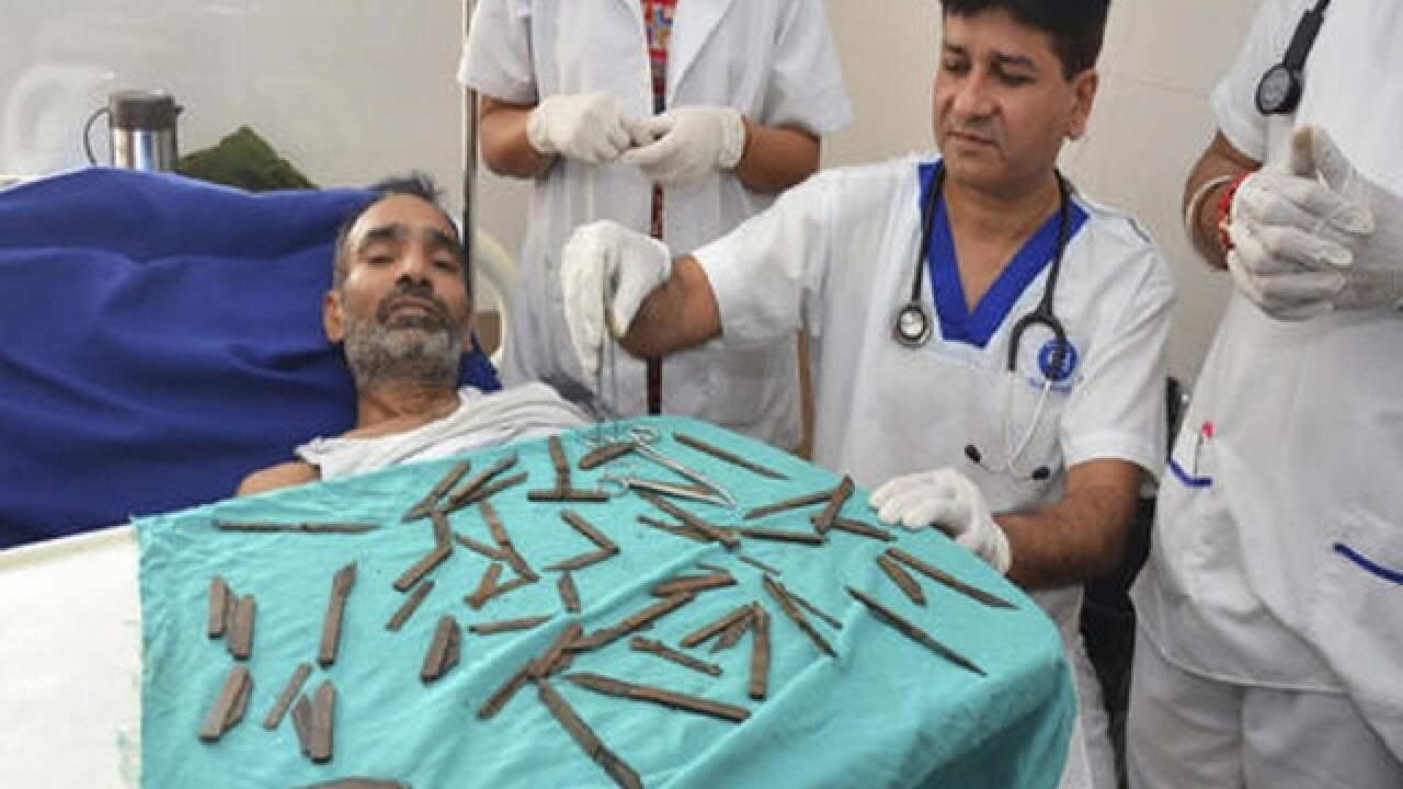 Doctors in India remove 40 knives from man's stomach