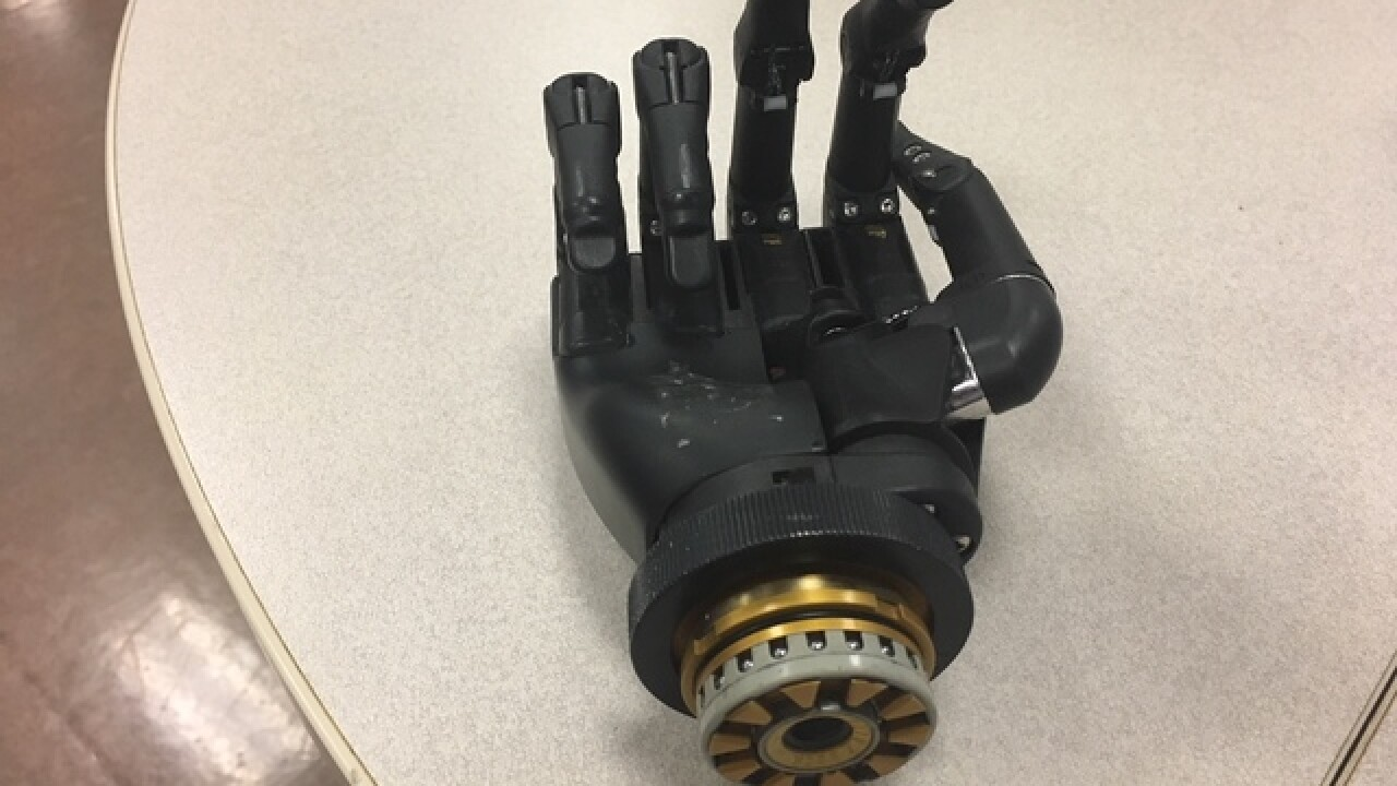 Man tries to get prosthetic hand back to owner
