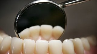 Dentists Offering NHS Treatment Continue To Dwindle