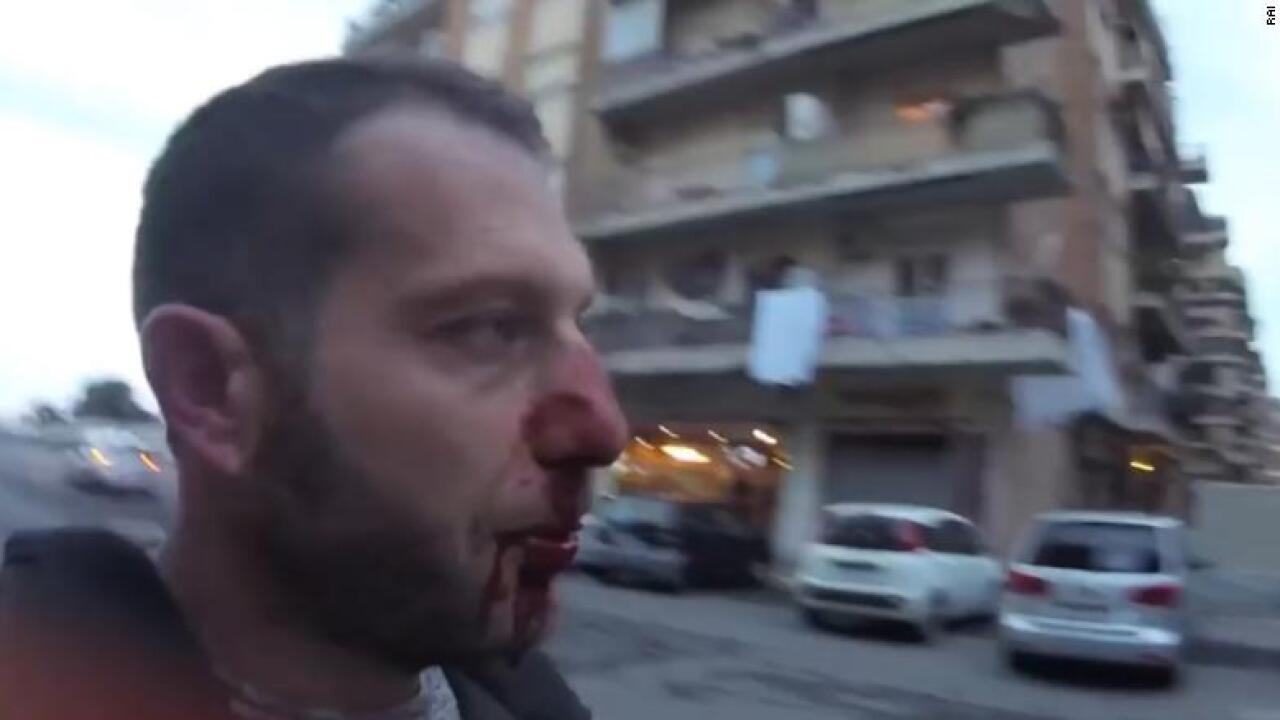 Italian reporter head-butted during interview