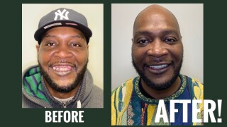 SMILE AGAIN BEFORE AND AFTER