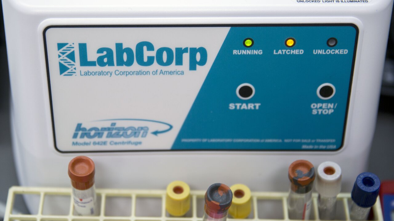 It's not just Quest: LabCorp says it was hacked too
