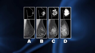 Breast density characterization scale