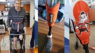 Browns prosthetic leg