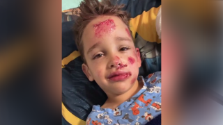6-year-old hit by truck while trick-or-treating recovering in hospital