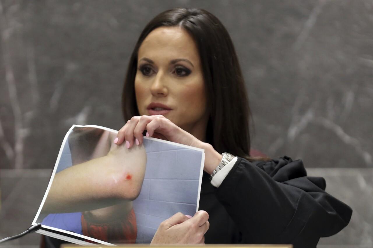 Judge Elizabeth Scherer holds picture of injury to Nikolas Cruz's elbow after 2018 jail fight