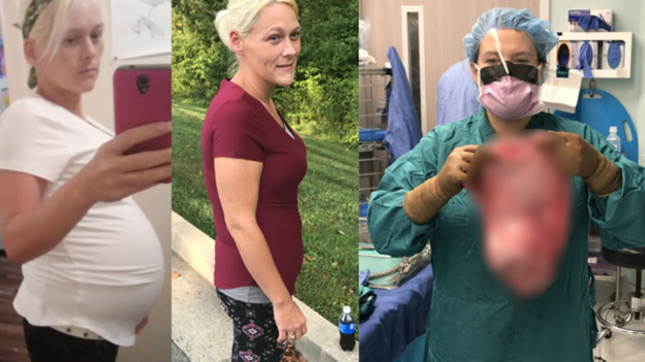 Woman in Tennessee has 20-pound cyst removed from stomach