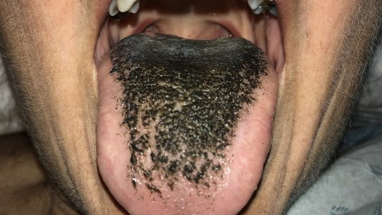Black hairy tongue: What to know about the bizarre disease