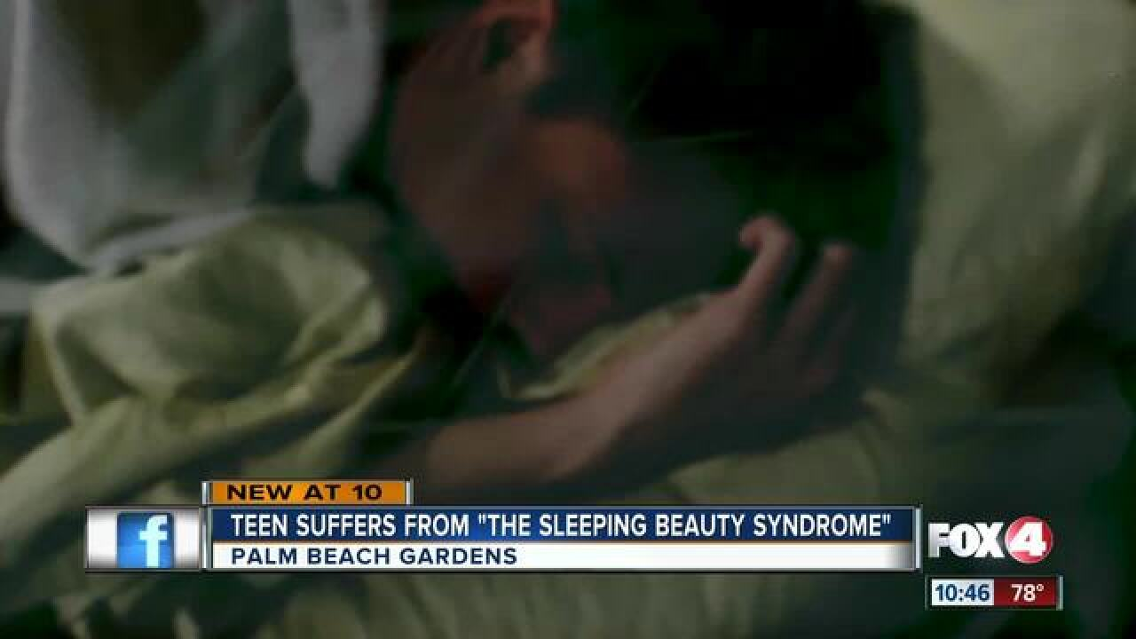 Fla. teen sleeps for weeks due to rare syndrome