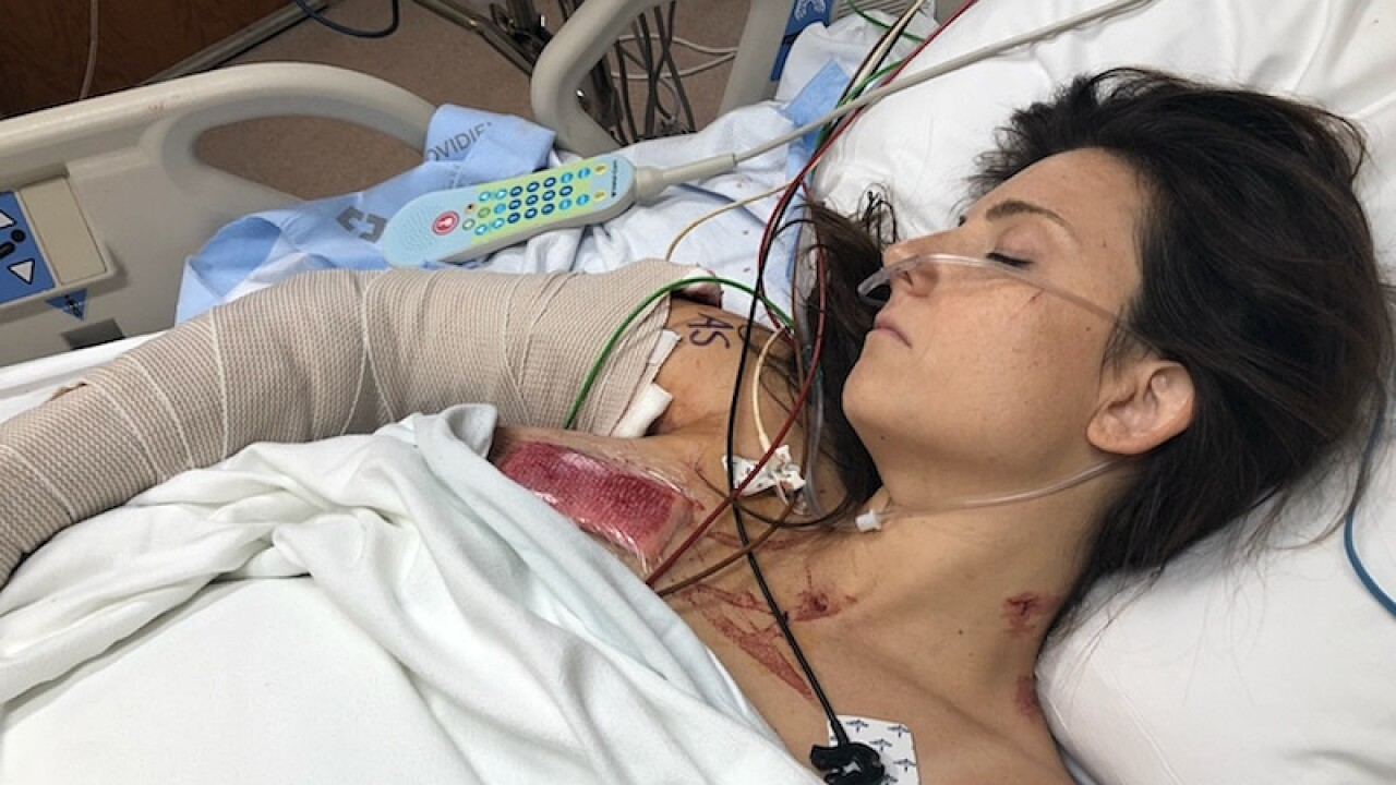 Whitney Austin survived a mass shooting after being shot 12 times in Cincinnati back in 2018