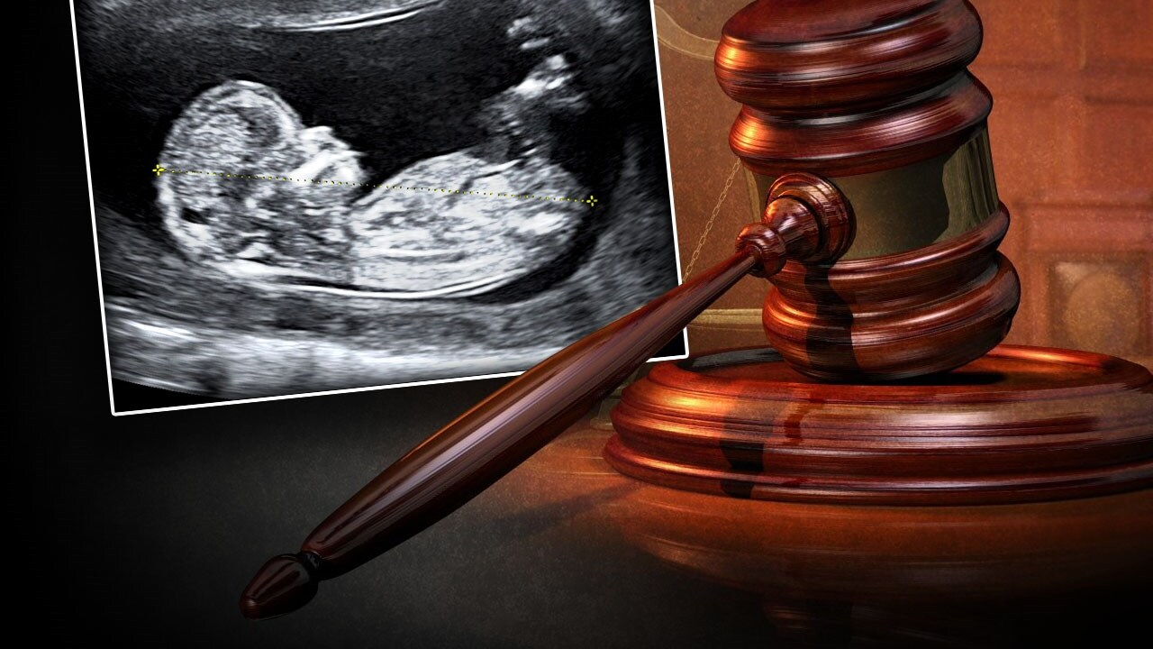 Utah's 18-week abortion ban won't be enforced while lawsuit moves forward in court