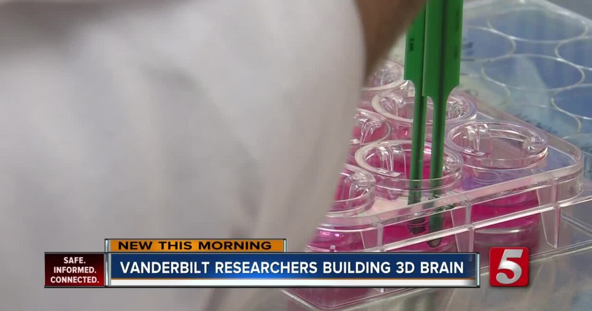 Researchers one step closer to building a brain in a dish