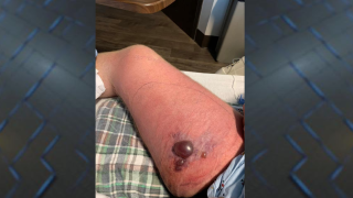 Alabama man diagnosed with flesh-eating disease, wife says
