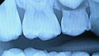 NY dentist details 'epidemic of cracked teeth' brought on by COVID-19, stress