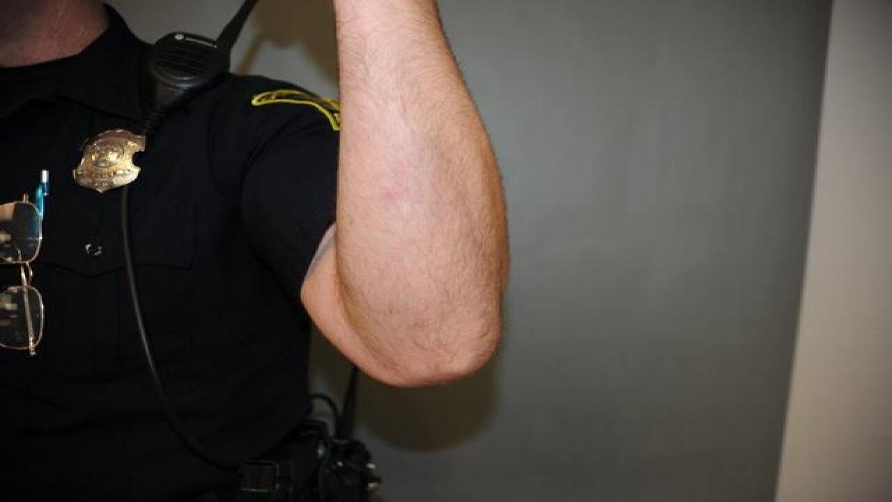 Photos show officer's wounds from knife attack