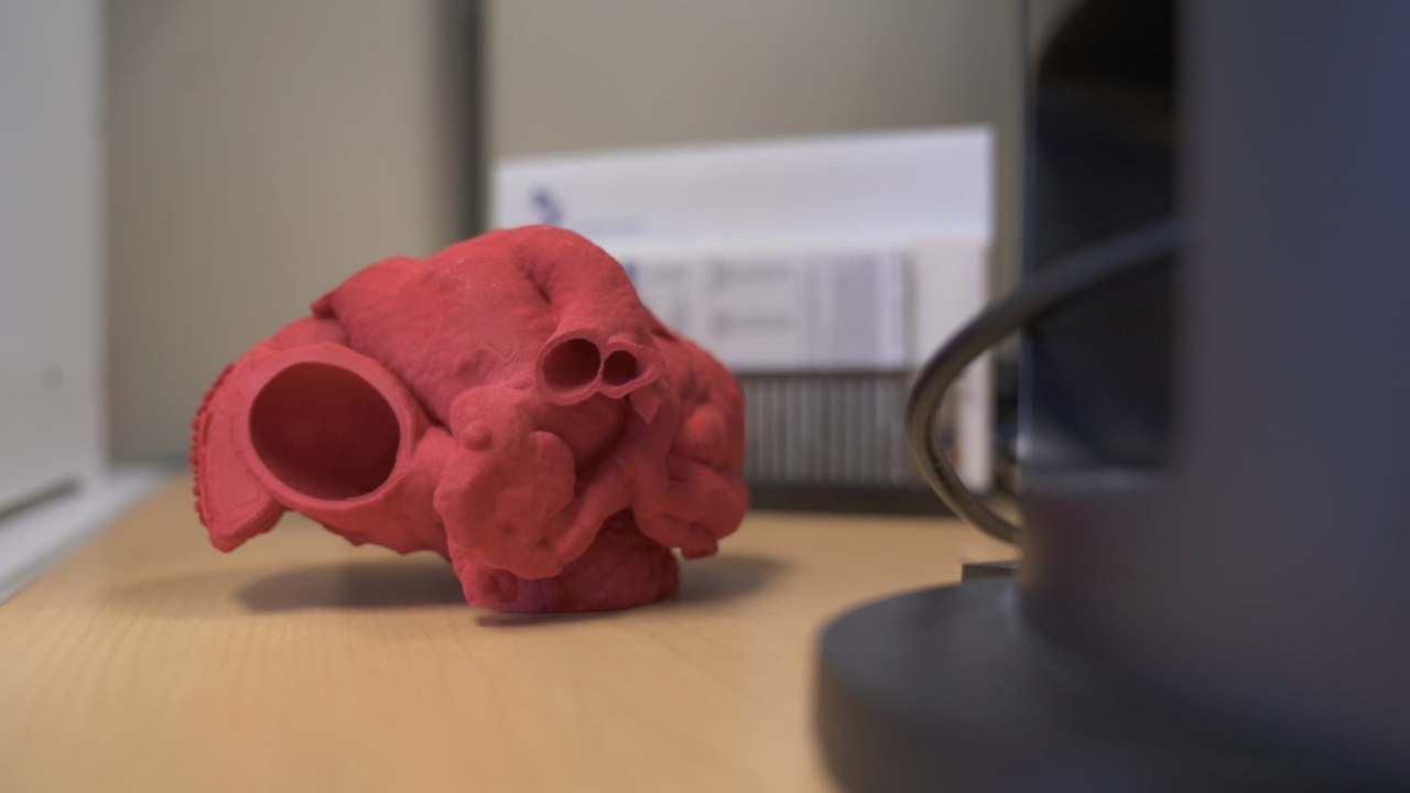 Children's hospital leading nation with 3D printer technology for heart surgery