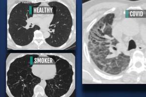 USF doctor warns COVID can severely damage lungs, even in those without symptoms