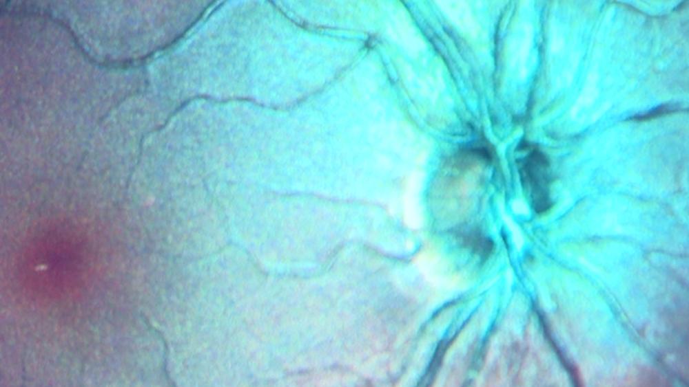 eye-exam-to-detect-Alzheimer's-sooner.png