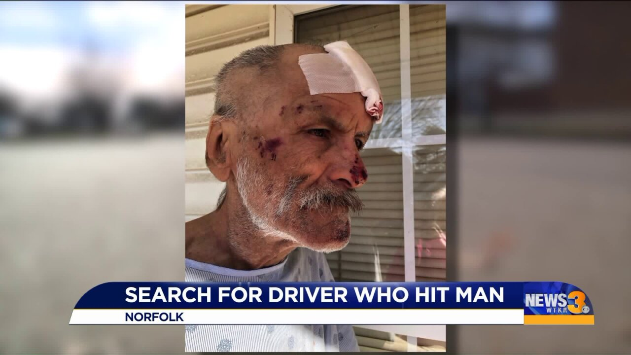 Norfolk hit-and-run victim left with stitches and bandages; sister looks foranswers