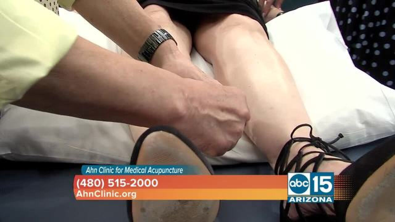 STOP fibromyalgia pain with acupuncture!