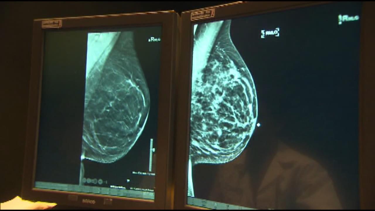 fda mammograms.png