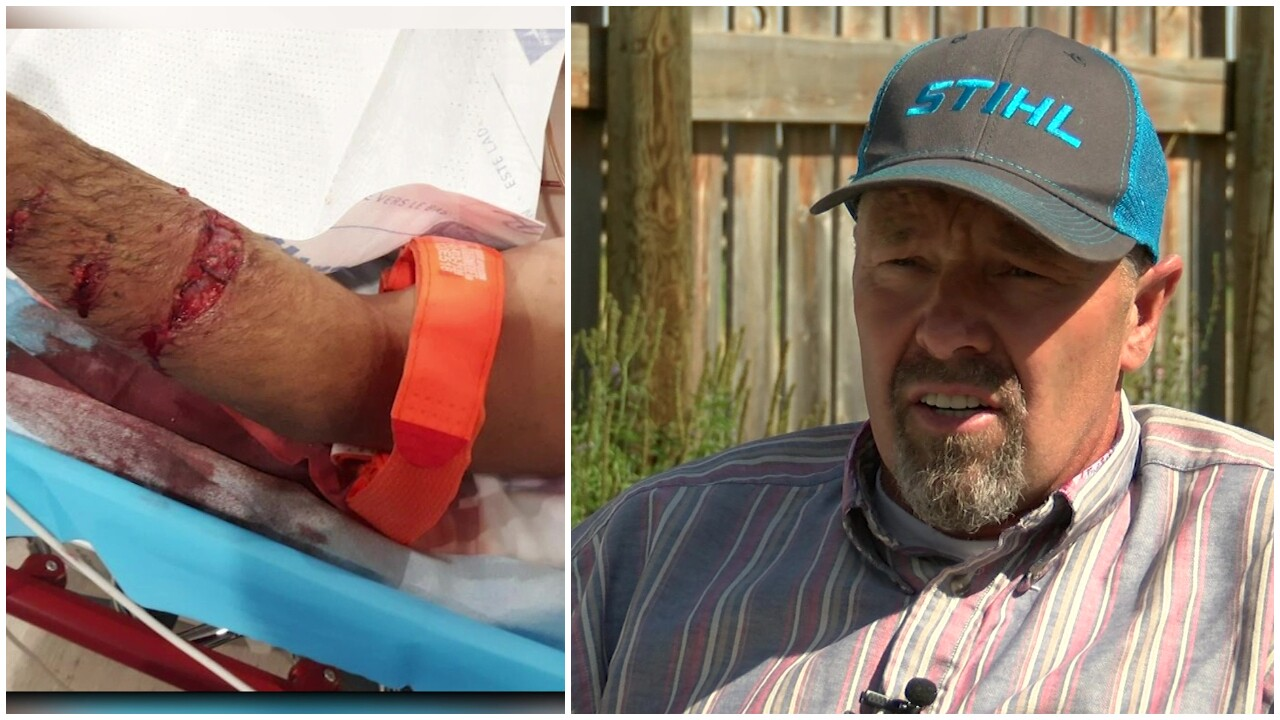 Survivor of grizzly bear attack is frustrated with FWP response