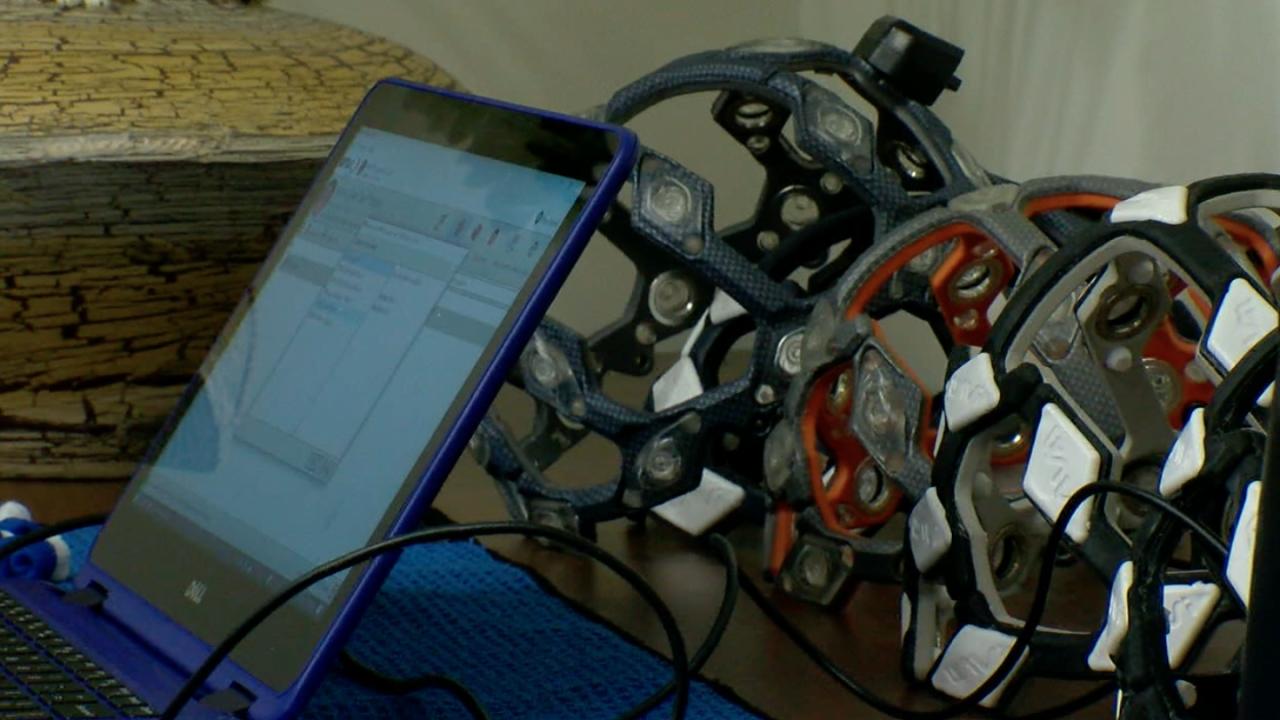 brain scan technology
