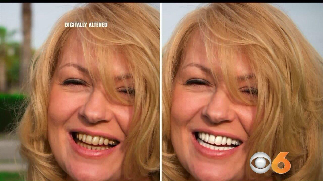Whiter Smile inMinutes