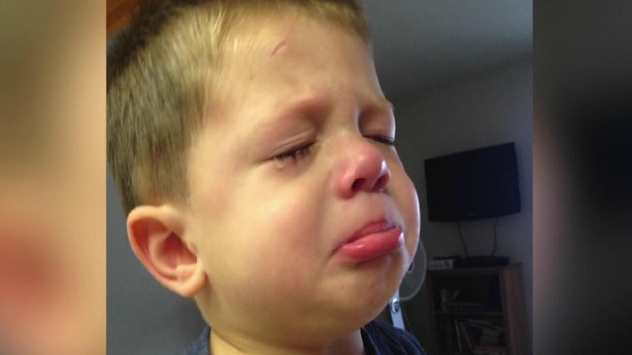 California mom claims 'tear-free' shampoo burned her son's eyes