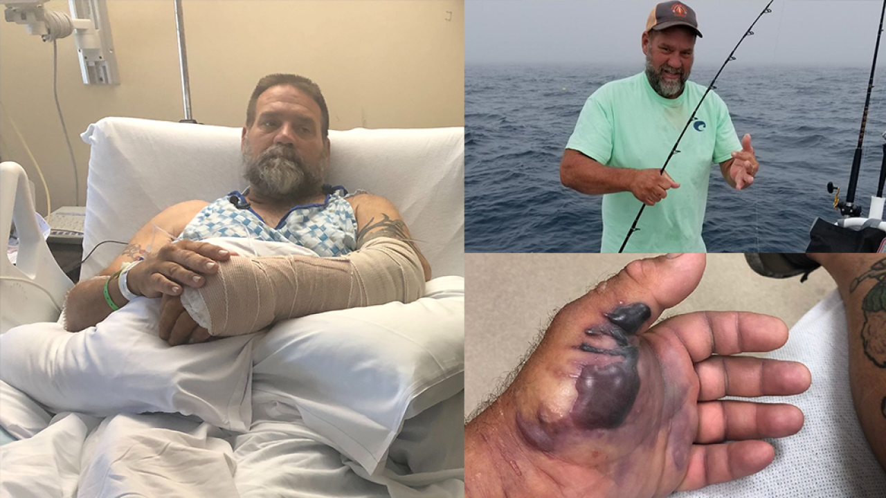 Flesh-eating bacteria infects Florida man fishing off coast of Palm Harbor in Gulf of Mexico