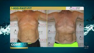 A new technology that helps get rid of stubborn fat on CoastLive