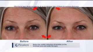 Want to look younger for the holidays? TryPlexaderm!