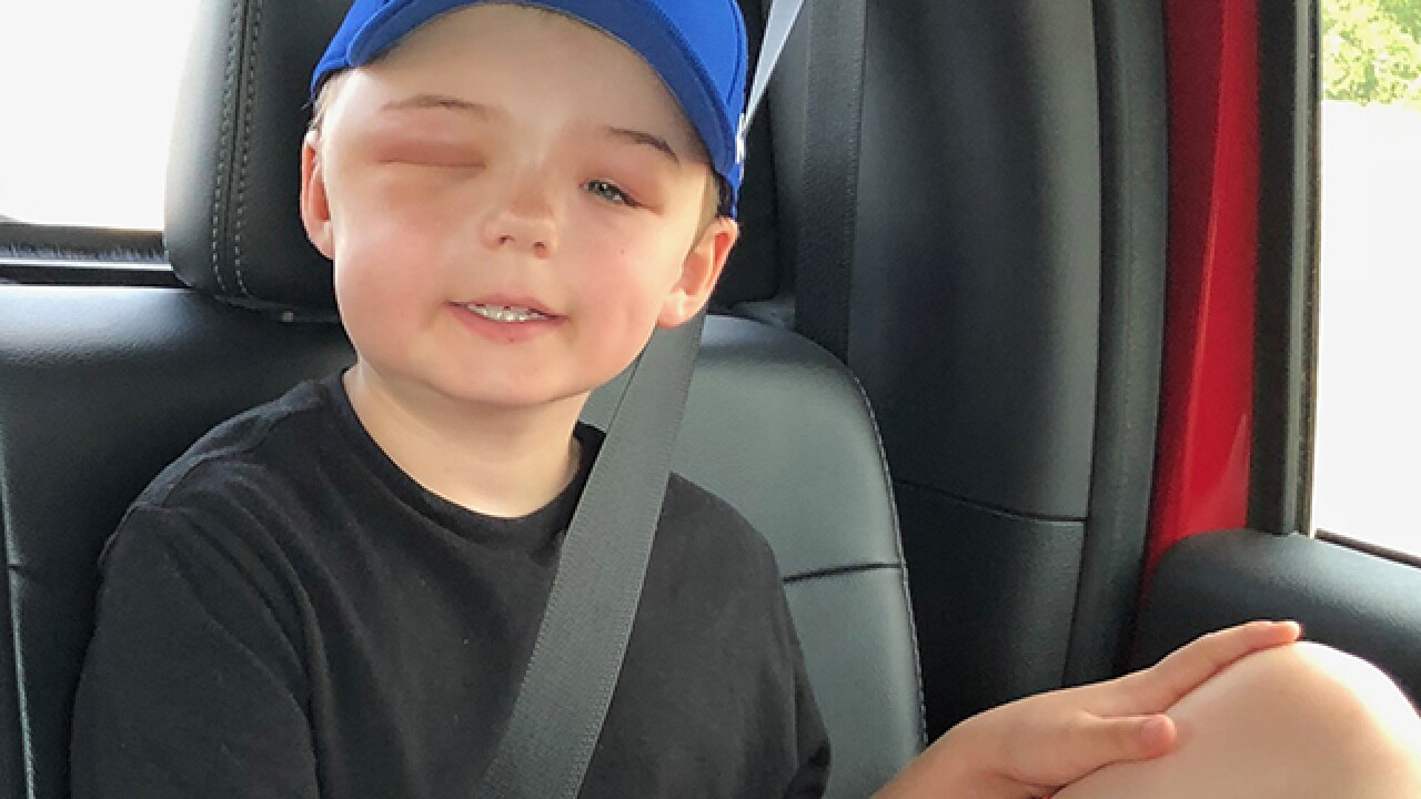 Boy hit by baseball at MSSU game returns home