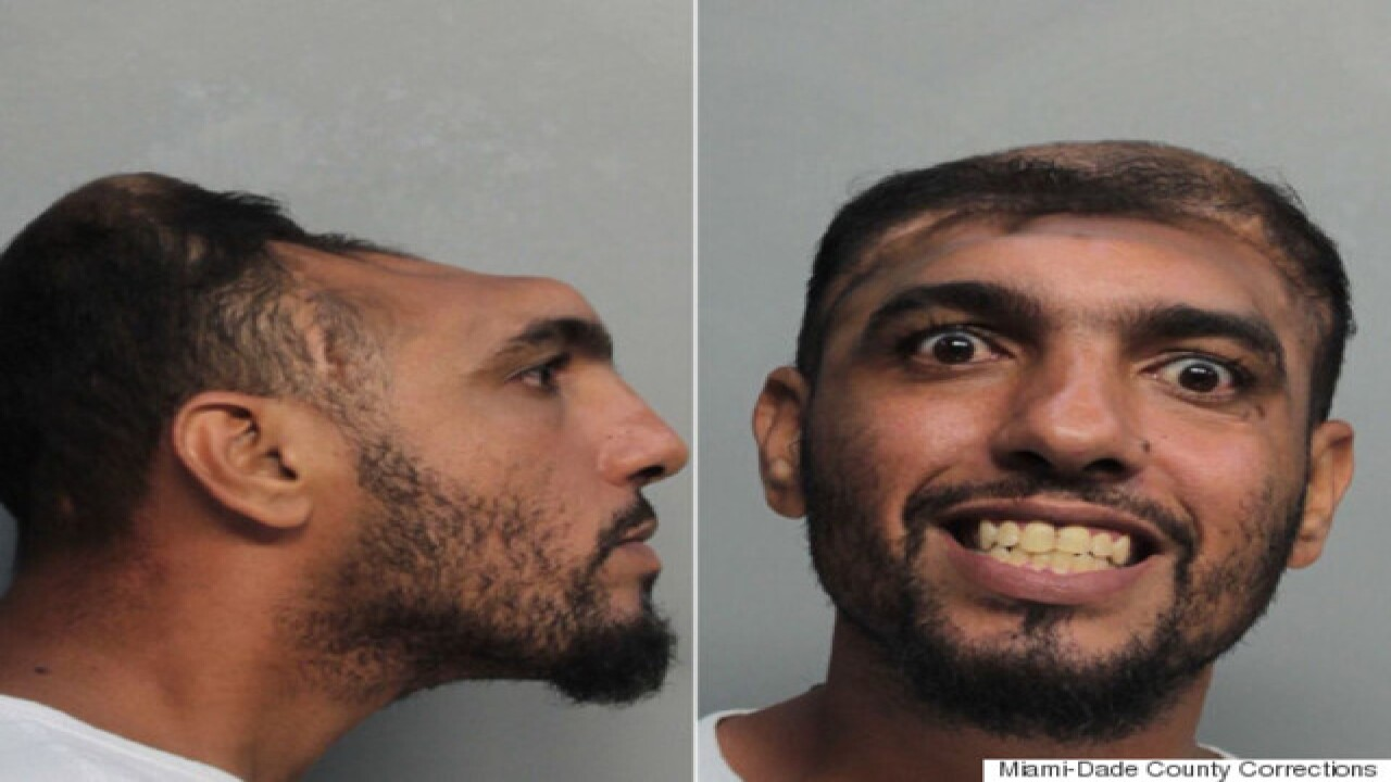 'Half-headed' Florida man faces arson, murder charges