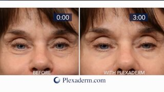 Get up to 50% off plus free shipping onPlexaderm