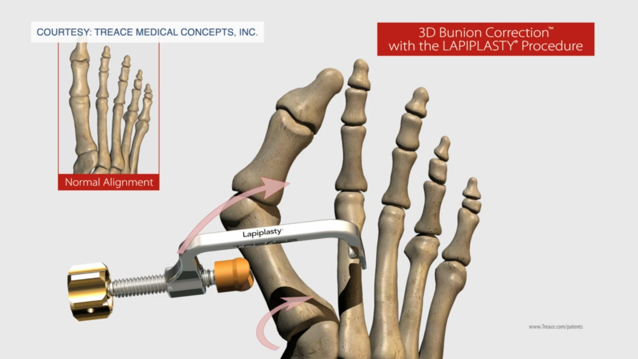 3D surgery seeing high success rate for those who suffer with bunions