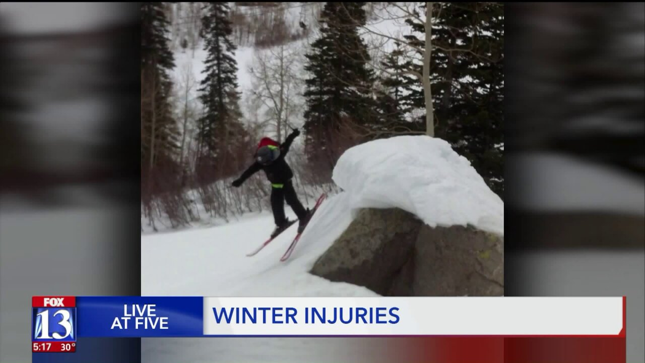 Wear a helmet, and 'know your abilities' — How to avoid injuries during winter activities