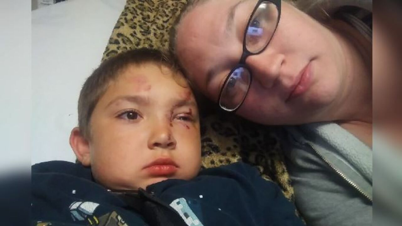 Mother Says 6 Year Old Son Attacked After Standing Up To Friend S