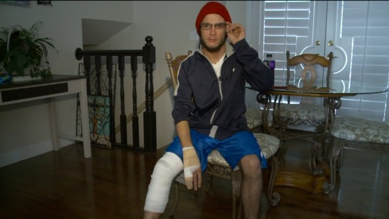Utah man burned by exploding battery urges other e-cigarette users to be cautious