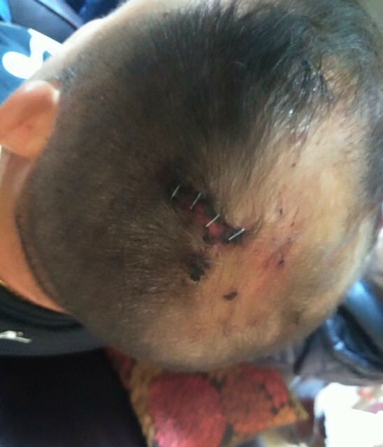 Home invaders hit victim in head with crowbar