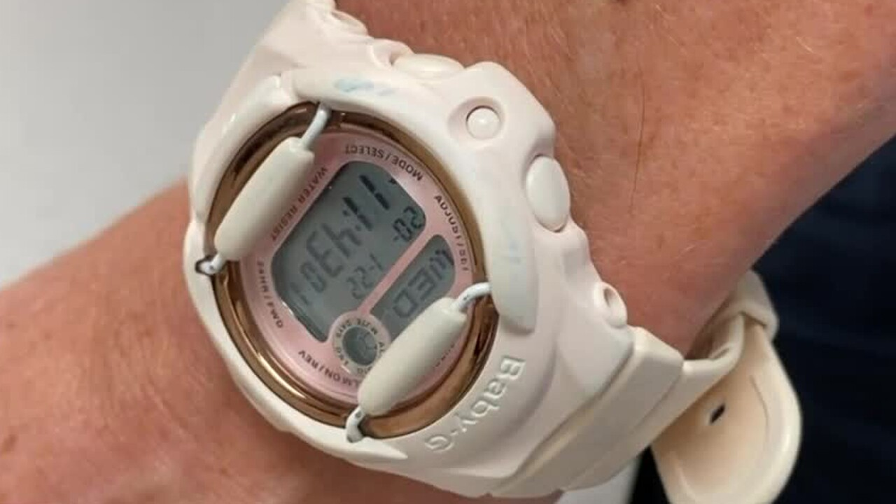 Tests find E. coli, staph bacteria on wristwatches