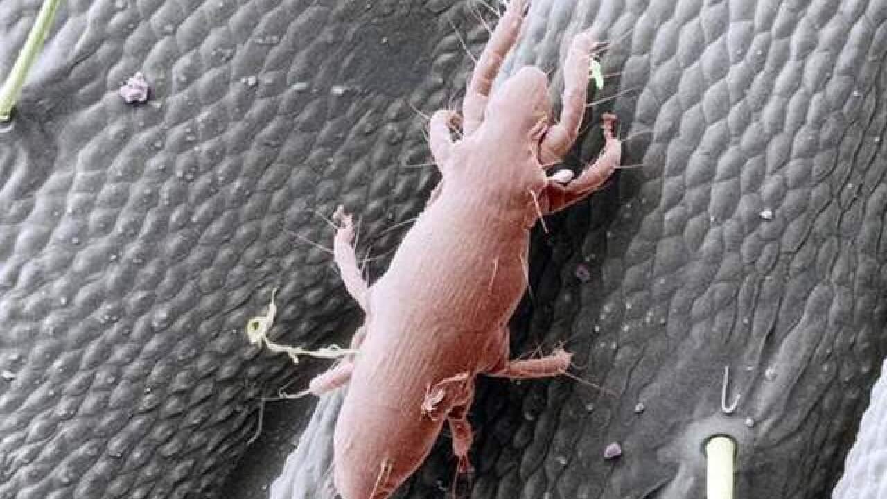 Biting Oak Mites invade Northern Ohio